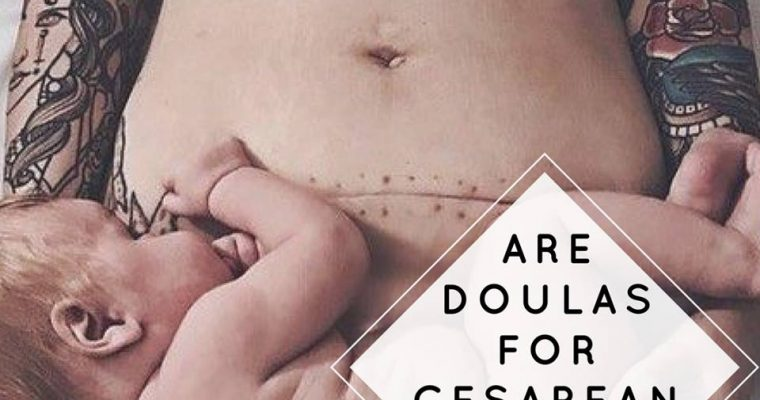 Do Doulas Support Cesarean Birth?